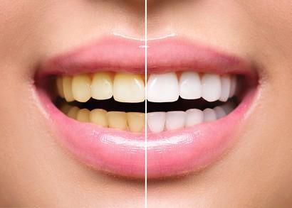Gelbe Zähne werden zu weißen Zähnen durch Zahnaufhellung und Zahnbleaching